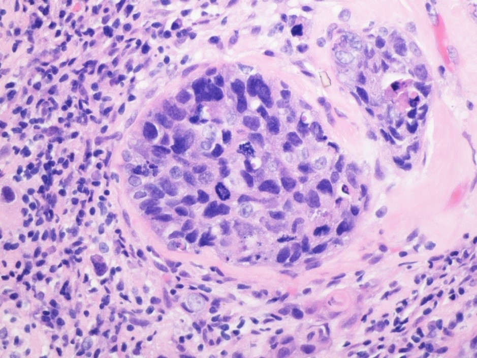 breast cancer tissue stained with hematoxylin and eosin